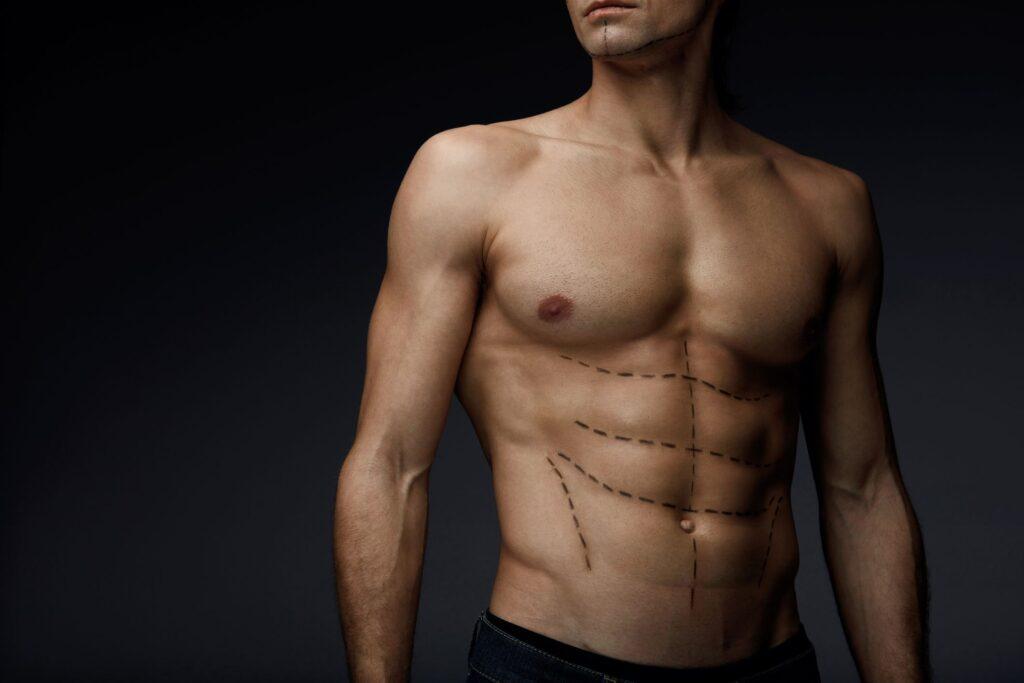 Plastická chirurgie není blízká jenom ženám. Jaké zákroky nejčastěji podstupují muži?
