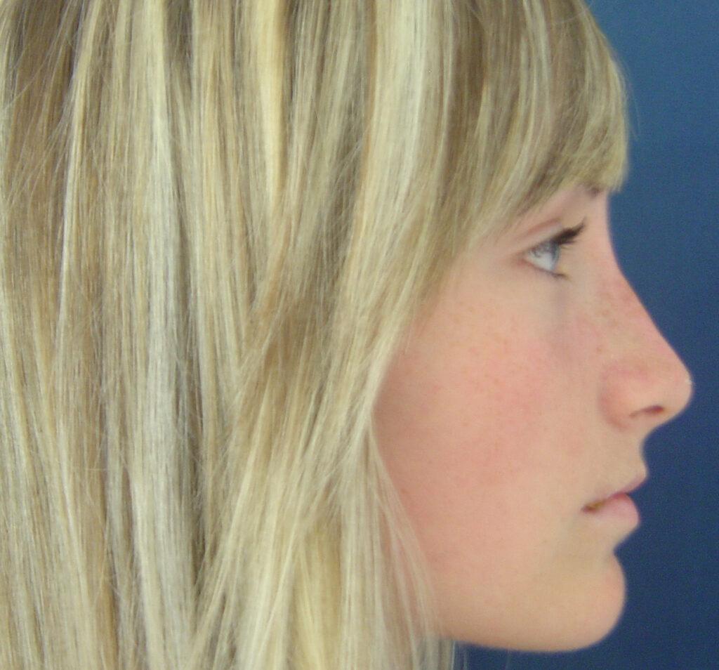 Operace nosu dodá sebevědomí